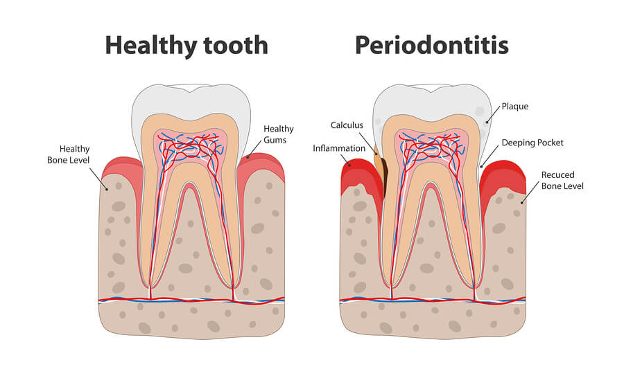 Health tooth vs. tooth infection.