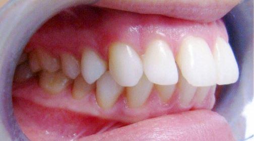 Bọc răng sứ cho răng hô khi nào nên sử dụng để có kết quả?