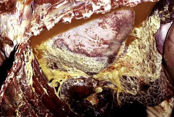Acute fibrino-purulent pleuritis.