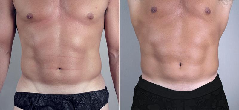 erkeklere özel vücut estetiği