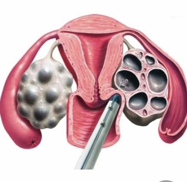 imagem representativa de como ocorre a punção de óvulos