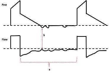 Waveforms for primary airways disease