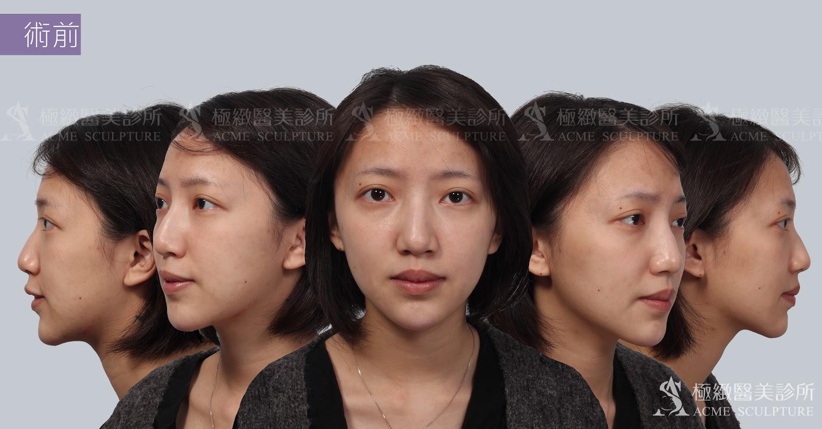 結構式隆鼻與敲鼻骨全方位成果檢視