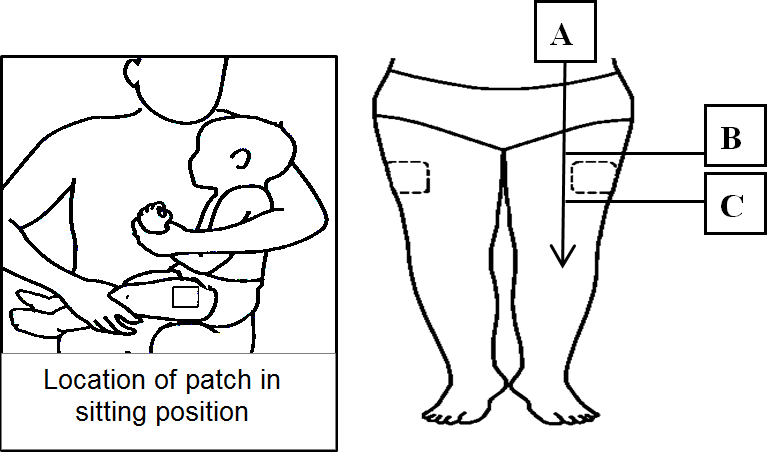 Numbing Cream Patch Thigh Location.png