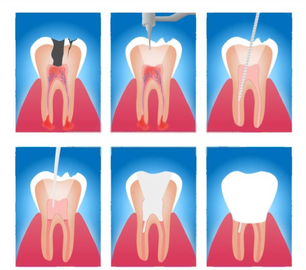 Root canal therapy is used to treat infected root canal.