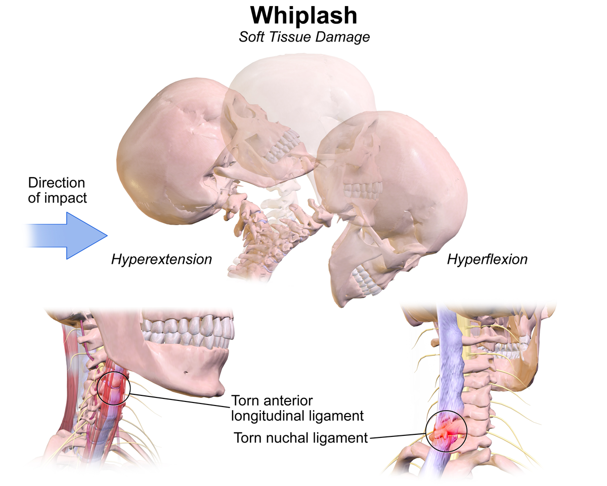 Image result for whiplash injury