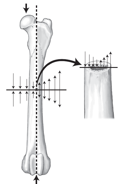 During weight-bearing, load applied to the femoral head produces bending forces at the femoral diaphysis