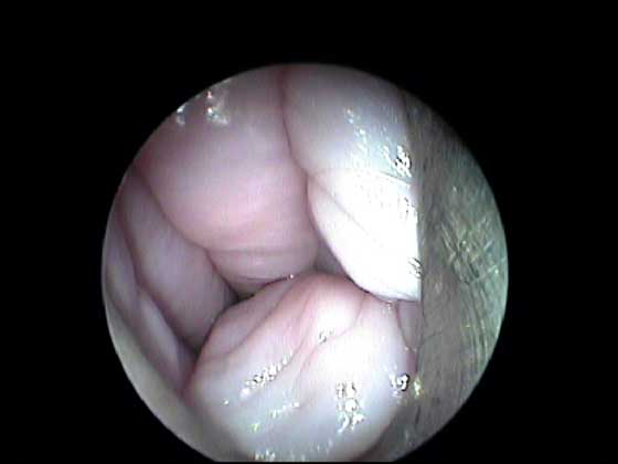 Typical appearance of the vaginal folds as the endoscope is advanced through the lumen.