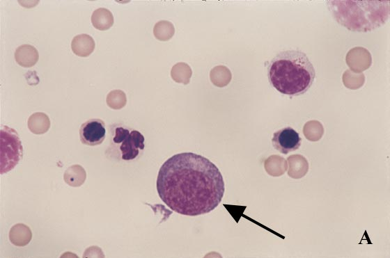 Blast cells (arrow) are noted that are larger than a neutrophil and have an eccentric nucleus, irregular chromatin, prominent nucleoli, and focal clear zone in a dark basophilic cytoplasm.
