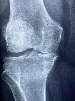 Knee, X Rays, Arthritis, Skeleton