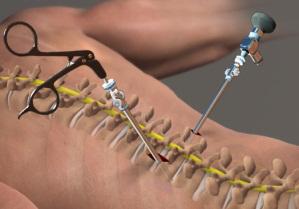 Resultado de imagem para lumbar spine stenosis