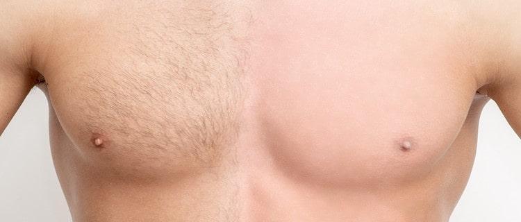 胸毛脱毛のメリット