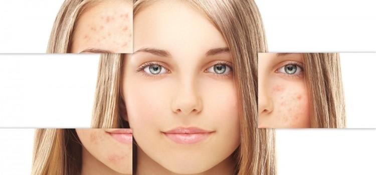 Top 3 loại mặt nạ trị nám từ thiên nhiên hiệu quả nhất