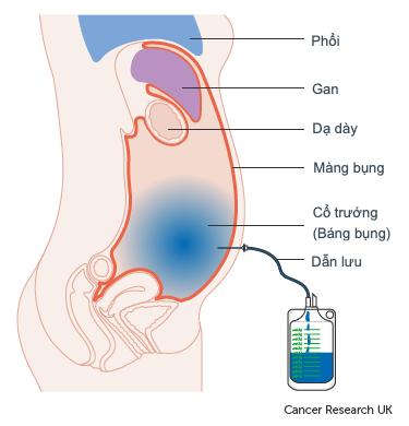 Sơ đồ thể hiện dịch ổ bụng (cổ trướng) dẫn lưu từ bụng