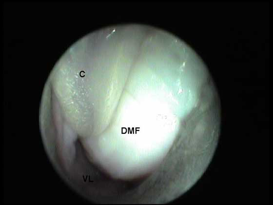 Paracervix with the large dorsal median fold (DMF) and crescentic vaginal lumen (VL). The catheter (C) is used to keep the fold off the endoscope lens.