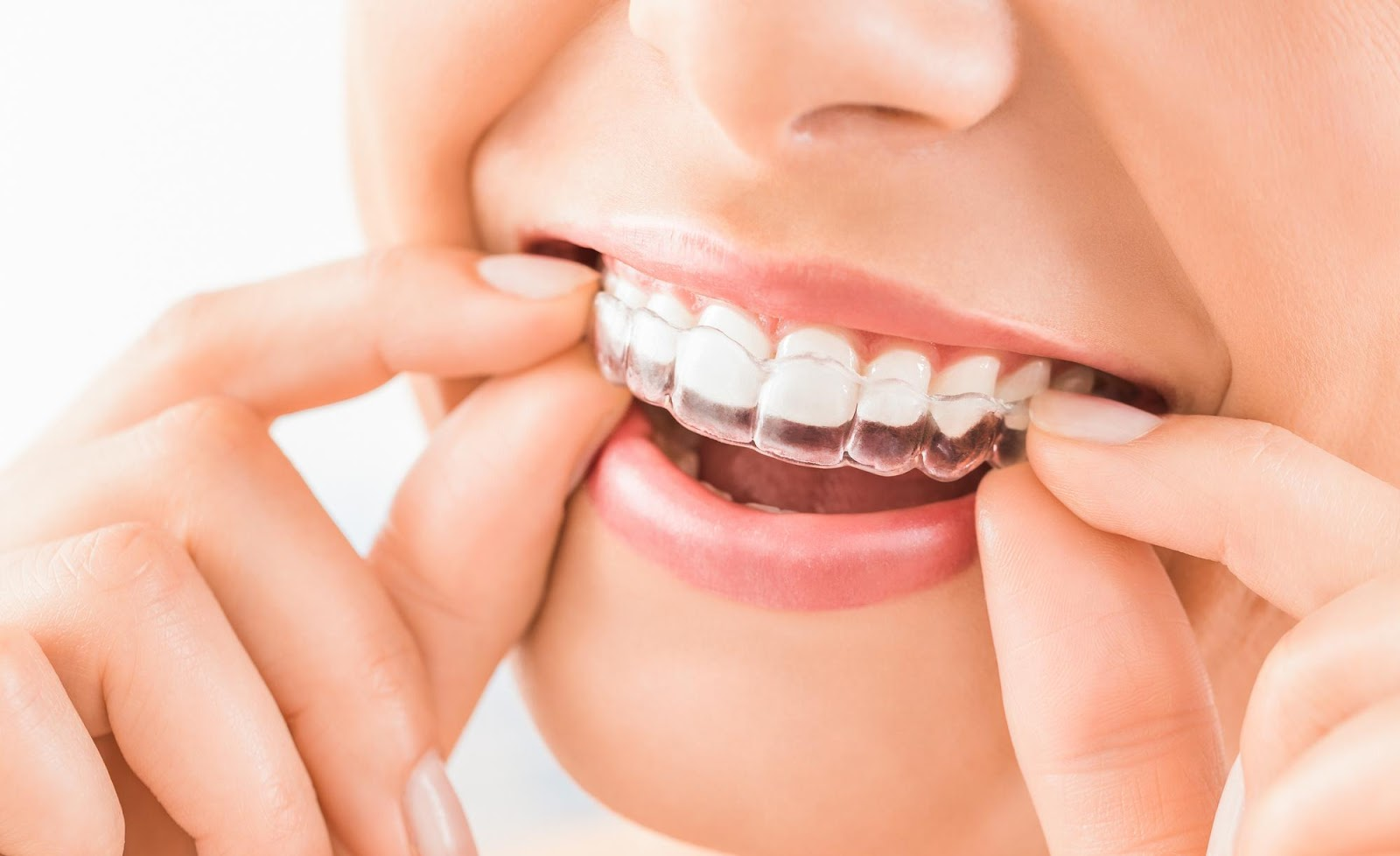 Does Insurance Cover Invisalign: This Is What You Need to Know