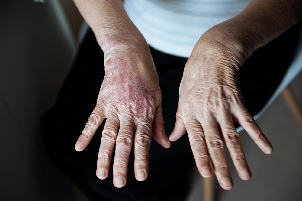 No Brasil, 2,5 milhões de pessoas sofrem com a psoríase. (Fonte: Shutterstock)