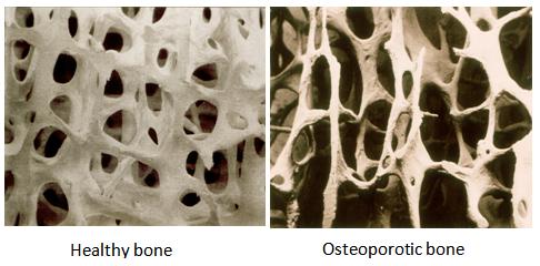 Osteoporosis 1.jpg.bmp