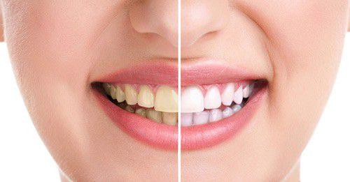 Lấy cao răng có ảnh hưởng gì không?- Nha khoa Bally 1