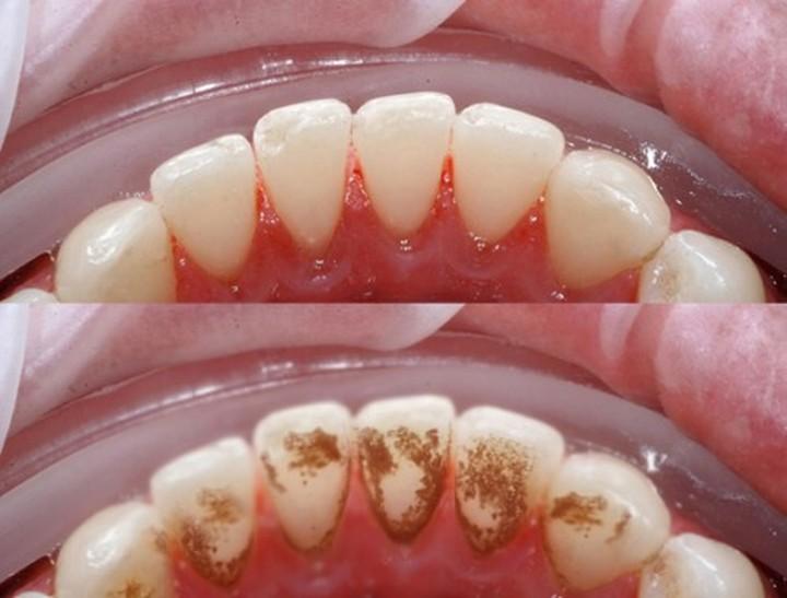 Lấy cao răng có đau không và ê buốt bao lâu? - Nha khoa Bally