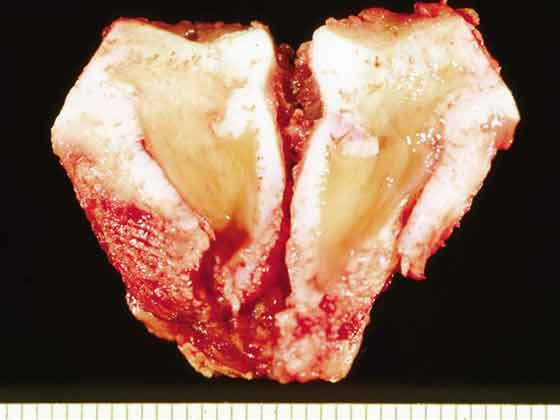 A cross-sectional portion of the body of the left arytenoid cartilage affected with chondritis. The cartilage is thickened and the central portion is undergoing degeneration.