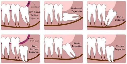 nhổ răng bao lâu thì lành và nên kiêng gì để nhanh lành thương 1