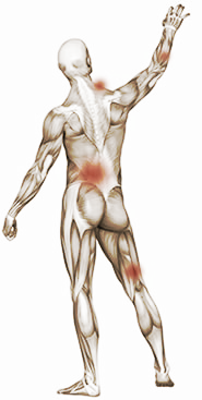 Common locations for painful Trigger Points (TrP)