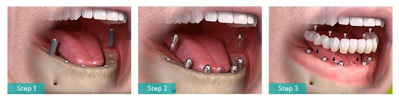 Description: Full Mouth Implants (All on 6) in Brooklyn