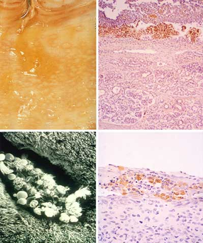 Equine respiratory disease caused by EHV-1 or EHV-4 demonstrating herpetic vesicular lesions in the nasal mucosa (top left), focal destruction of ciliated respiratory epithelial cells (bottom left), and the presence of viral antigens (brown stain) in nasal epithelial cells (right).