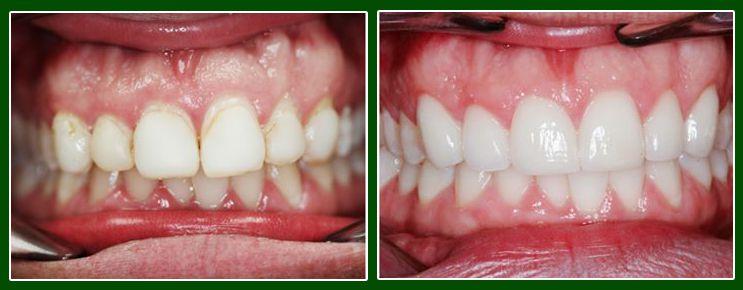 Làm sạch cao răng bằng húng quế có hiệu quả ra sao? 1