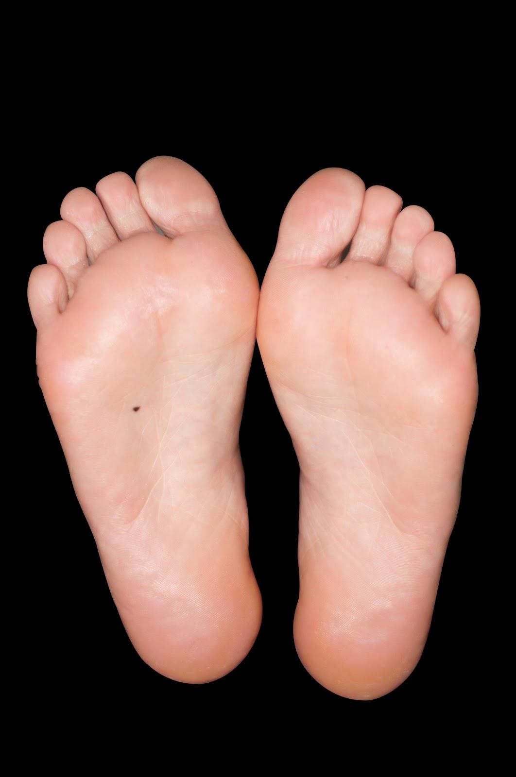 #9) Mole on feet