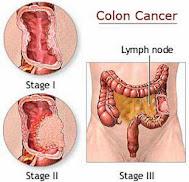 Solusi Pengobatan Untuk Penyakit Kanker Usus