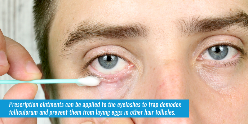 Prescription ointments can be applied to the eyelashes to trap Demodex folliculorum and prevent them from laying eggs in other hair follicles.