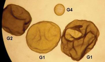 Embryons de 8 jours de divers grades de qualité
