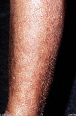 hot dry skin