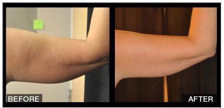 Antes y después de la aplicación en brazos