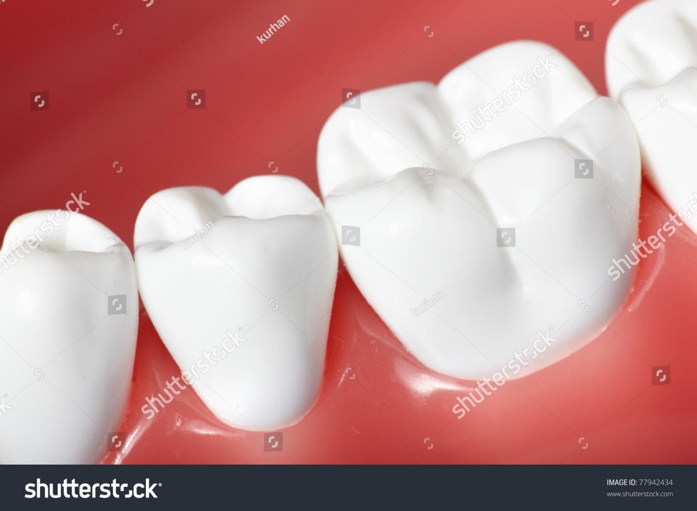 Vẻ ngoài của nhóm răng hàm