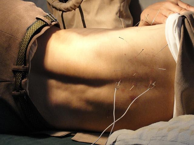 acupuncturist insurance