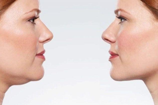 before and after of v jaw line surgery