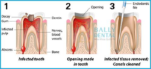 Lấy tủy răng sữa có nguy hiểm không, cần lưu ý những gì?