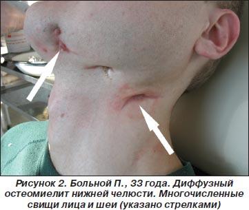 Остеомиелит приводит к свищам