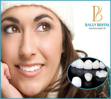 Răng sứ Cercon có tốt không, độ bền và khả năng ăn nhai thế nào?