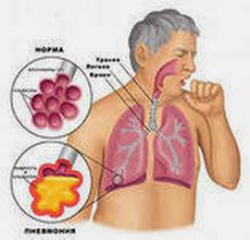 Воспаление легких лечение