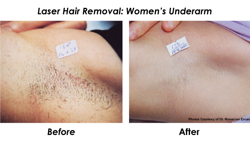 Laser Hair Removal Dallas Contact Form Laser Hair Removal Dallas