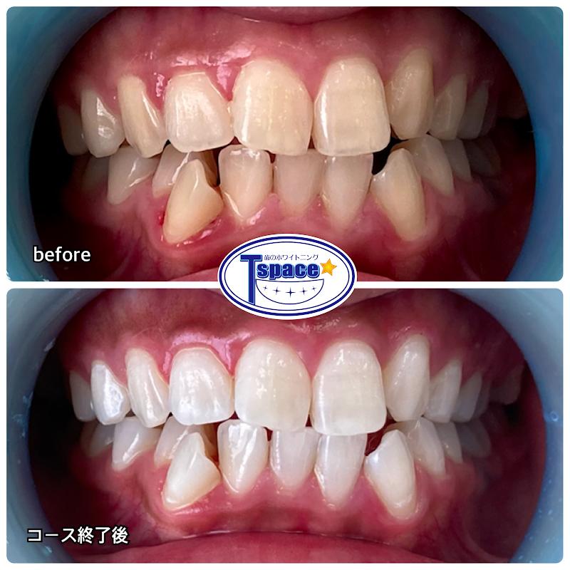 歯のホワイトニングT-space