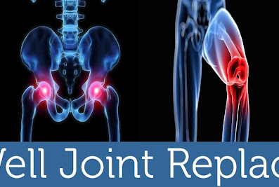 Dr Saurin Shah (Walkwell Joint replacement centre)