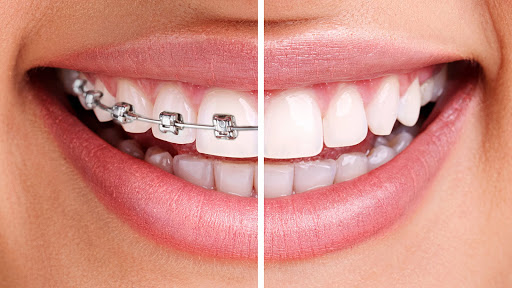 Swiss Dental Clinic