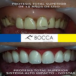 Bocca Clínicas Dentales