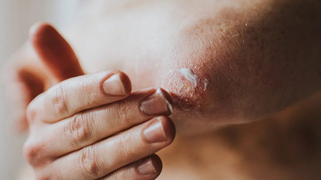 Best Psoriasis treatment by Dr Swapna Priya, one of the best Deramatologist in Hyderabad