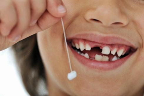 Hình ảnh răng được cha mẹ nhổ tại nhà